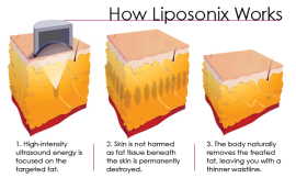 liposonix-works